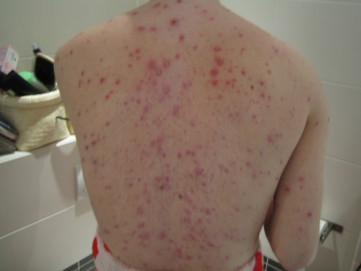Chickenpox Vaccination in the Netherlands