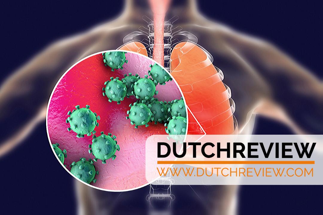 map of coronavirus cases in the Netherlands