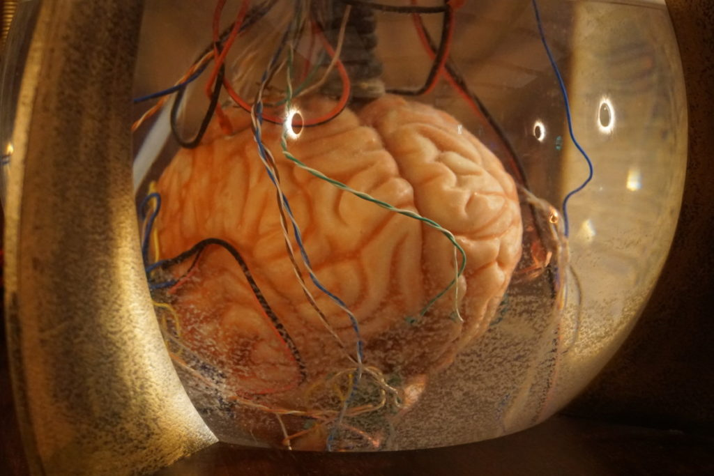 brain scientist crazy